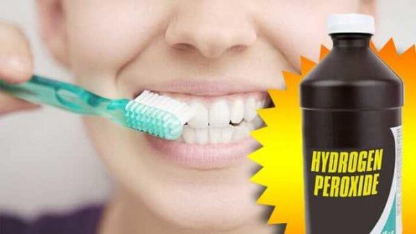 How to Whiten Teeth Overnight