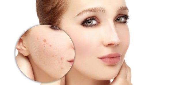 Sheet masks reduces acne